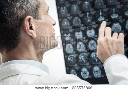 X Ray Scan. Nice Handsome Professional Neurologist Looking At The X Ray Scan And Studying It While D