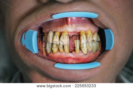 Gums And Tooth Structure Have Been Worn Away Leading To Exposed Root Surface And Sensitivity. Close