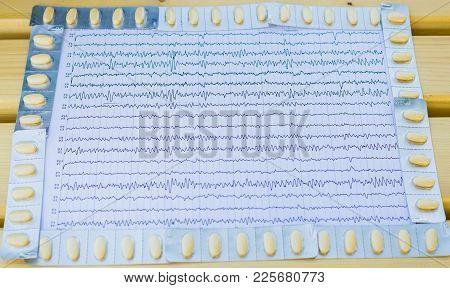 Eeg Interpretation Rezults After Epilepsy With Anticonvulsant Medication.