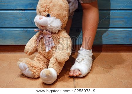 A Girl With A Broken Leg Shares Her Misfortune With A Best Friend