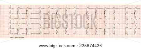 Ecg Tape With Pacemaker Arrhythmia (ventricular Stimulation)