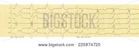 Ecg Tape With Rhythm Of Artificial Pacemaker (ventricular Stimulation)