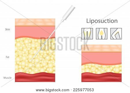 Liposuction Before And After , Fat , Cosmetic . Step Of Liposuction And Icon