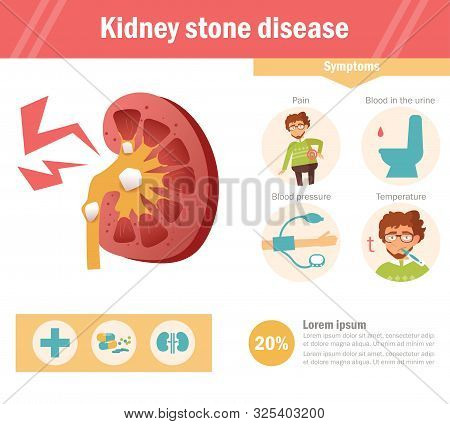 Kidney Stone Disease Vector. Cartoon. Isolated Art On White Background. Flat