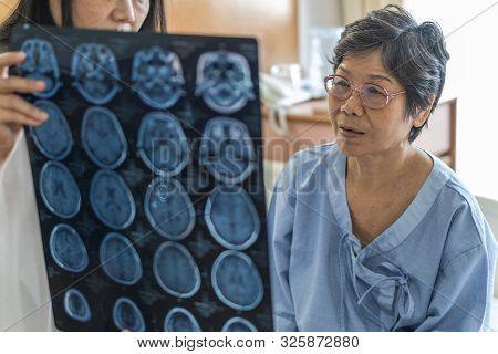Brain Disease Diagnosis With Medical Doctor Diagnosing Elderly Ageing Patient Neurodegenerative Illn