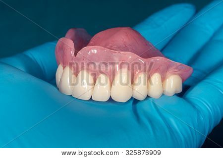 Denture. Full Removable Denture Of The Upper Jaw Of Man With White Beautiful Teeth In The Hand Of A