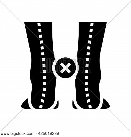 Curvature Of Legs Inward Glyph Icon Vector. Curvature Of Legs Inward Sign. Isolated Contour Symbol B