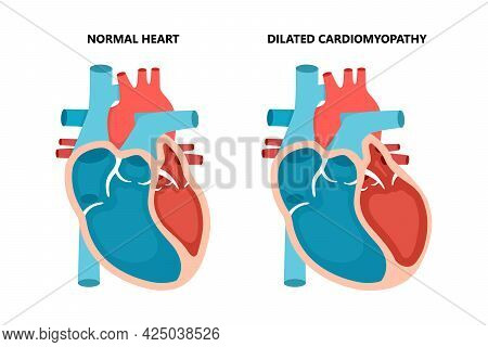 Dilated Cardiomyopathy With Cross-section View. Human Heart Muscle Diseases. Cardiology Concept.