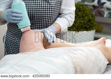 Beauty Ideas. Beautician Accomplishing Depilation With Hot Wax On Woman`s Leg Using Wax Device In Sp