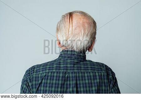 Rear view of a senior man crown balding