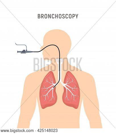 Bronchoscopy Respiratory System Emphysema Endoscopy Human Lung Examination. Bronchoscopy Icon