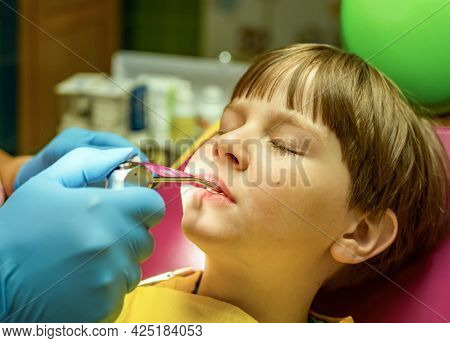The Dentist Is Carrying Out The Sanitation Of The Boy's Oral Cavity. Children Stomatology.