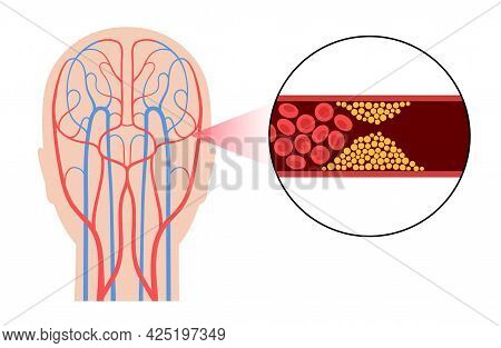 Ischemic Brain Stroke, Arteriosclerosis In Human Head Silhouette. Cholesterol In Blood Vessels. Fat