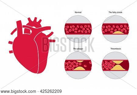 Cholesterol In Human Blood Vessels And Heart Logo. Fat Cells In Vein Artery. High Ldl And Hdl Level.