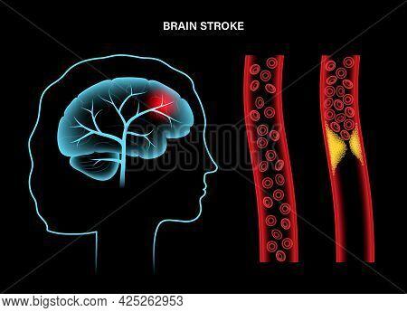 Ischemic Brain Stroke. Normal Artery And Arteriosclerosis. Cholesterol In Human Blood Vessels. Fat C