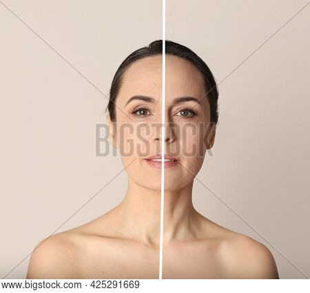 Photo Before And After Retouch, Collage. Portrait Of Beautiful Mature Woman On Beige Background