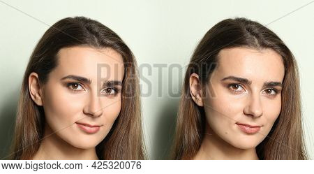 Photo Before And After Retouch, Collage. Portrait Of Beautiful Young Woman On Light Background, Bann
