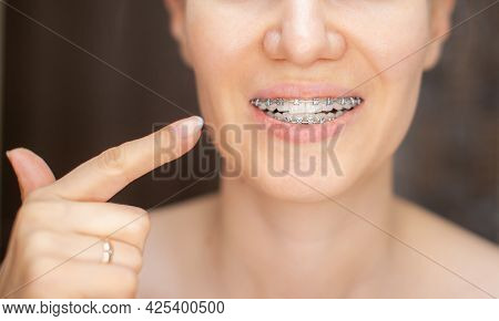 The Girl Points Her Finger At The Even And White Teeth With Braces. Straightening Your Teeth With Br