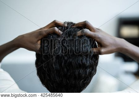 Young Woman Scratching Her Itchy Head Scalp