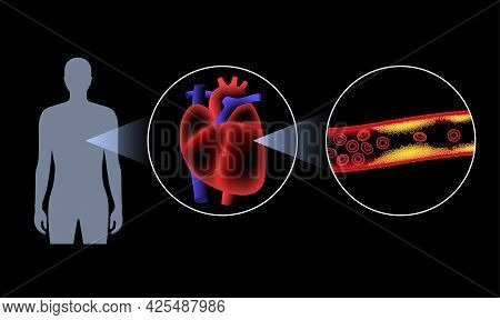 Cholesterol In Human Blood Vessels. Heart Logo In Man Silhouette. Fat Cells In Vein. High Ldl And Hd