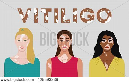 Set Of Female Faces With Vitiligo. World Vitiligo Day Poster. Collection Of Portraits Of Women With