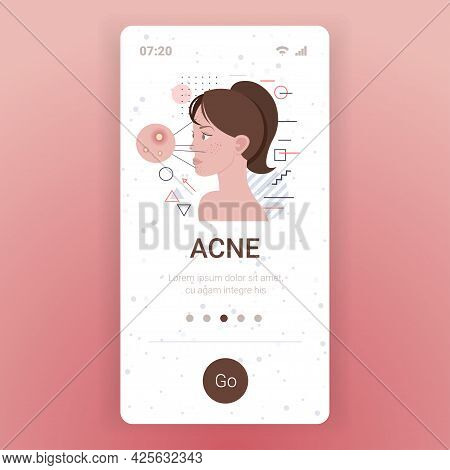 Acne On Woman Face Pore Comedones Cosmetology Skincare Problems Treatment Skin Disease Concept Smart