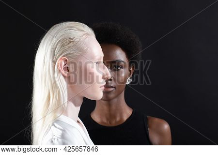 Caucasian Albino Girl And African American Young Woman Portrait Profile And Full Face On Black Backg