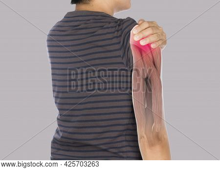 X-ray Shoulder Muscle Pain , Upper Arm Muscles Injury
