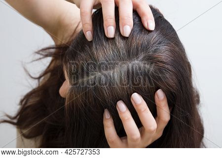 The Woman Shows Gray Hair On Her Head. Hair With Fragments Of Gray Hair, Hair Roots Requiring Dyeing