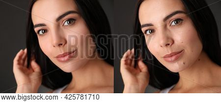 Photo Before And After Retouch, Collage. Portrait Of Beautiful Young Woman On Dark Background, Banne