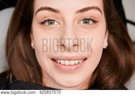 Close-up, Cropped Snapshot Of Beautiful Womans Face With Perfect Smile. At Dentist Appointment. Teet