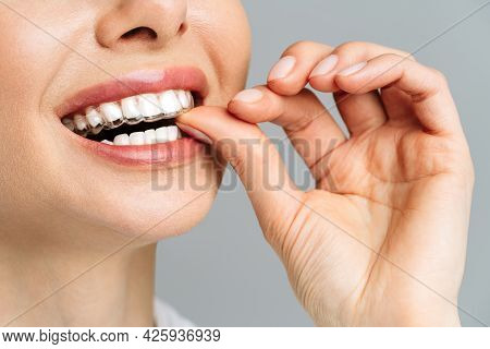 A Young Woman Does A Home Teeth Whitening Procedure. Whitening Tray With Gel