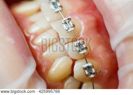 Installation of braces on teeth. Orthodontic dental treatment. Close-up of teeth with braces. High q