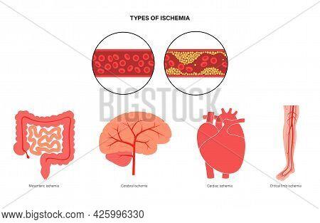 Myocardial And Mesenteric Ischemia, Brain Stroke And Peripheral Artery Disease. Blocked Vascular, Em