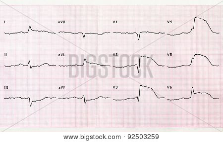 Emergency cardiology and intensive care. ECG with acute period macrofocal anterior myocardial infarction poster