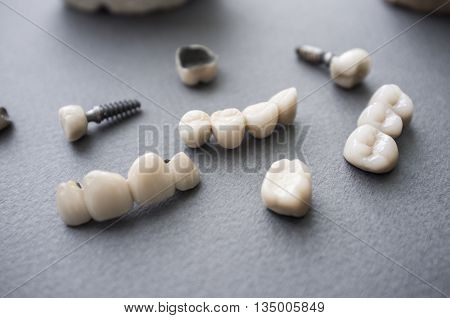 Ceramic dentures and crowns on gray background. Top view on set of single dentures and dental crowns. Tooth repair equipment on gray background.