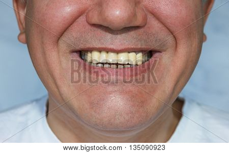 Man With False Upper Teeth