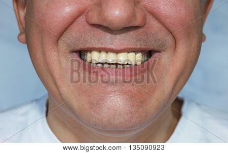 smiling man with false front upper teeth (dental bridge) poster