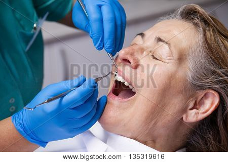 mature women in the treatment of gingivitis at the dentist