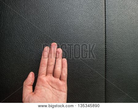 Hand Eczema On Black Leather Background With Copy Space