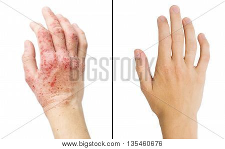 Real Photo Girl's Hand, The Patient With Eczema Before And After Treatment