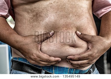 The Dangers Of Belly Fat., Obese Man In Jeans Squeeze The Belly Fat., Obese Man Is More Likely To Cl