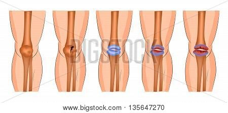arthritis of the knee joint protrusion fracture of the patella