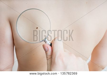 Doctor holds magnifying glass in hand and is examining patient skin for melanoma suspicion.