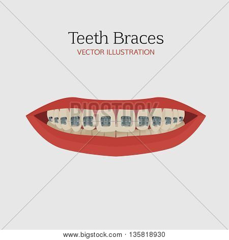 Anatomic bite concept. Medical educational image. Keep your teeth clean and healthy. Smiling female mouth with teeth and braces. Vector illustration.