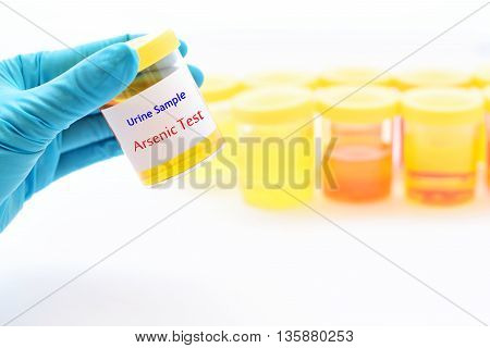 Urine sample for arsenic (Heavy metals) test
