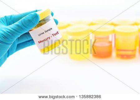 Urine sample for Mercury (heavy metal) test