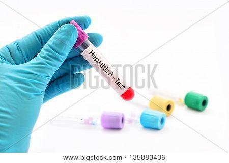 Blood sample for hepatitis B virus (HBV) testing
