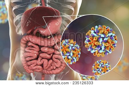Liver With Hepatitis B Infection And Close-up View Of Hepatitis B Viruses, Medical Concept, 3d Illus