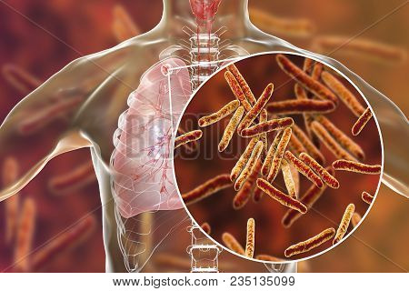 Secondary Tuberculosis In Lungs And Close-up View Of Mycobacterium Tuberculosis Bacteria, 3d Illustr